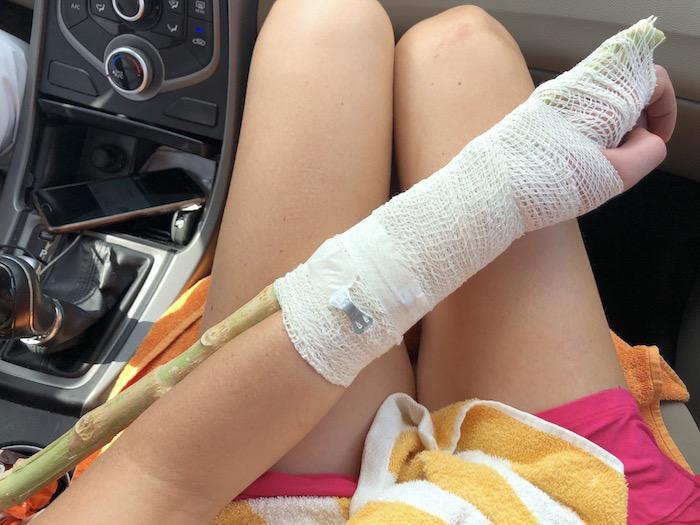 Im Wadi Shab meinen Arm gebrochen – <div>im Kims Oman Hospital operiert</div>
