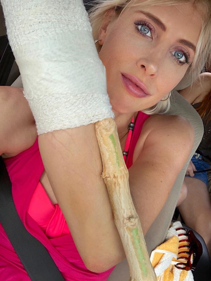 Elischeba Wilde - Verletzung am Arm